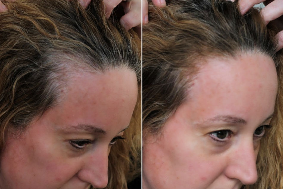 Before and after using Gray Away to cover gray hairs